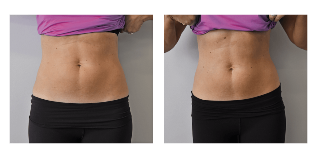 cryoskin before and after woman